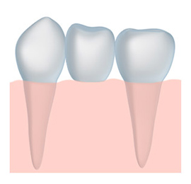 Image of a dental crown and dental bridge by White Family Dental